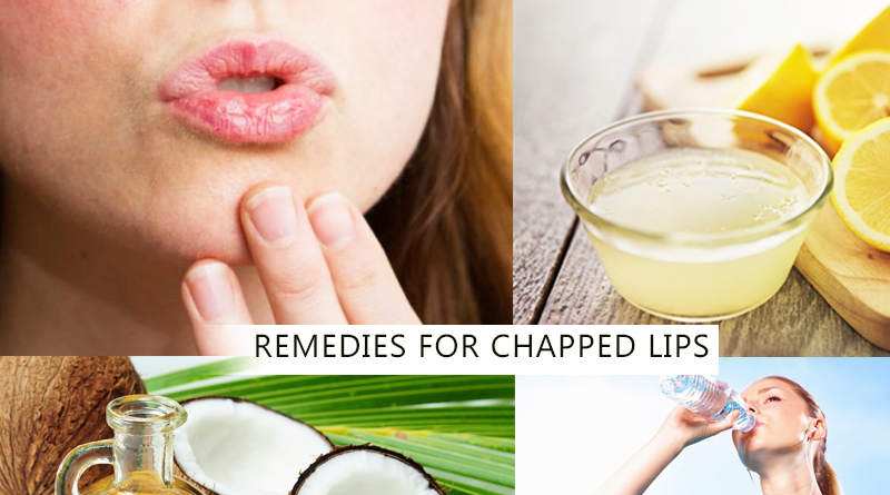 REMEDIES FOR CHAPPED LIPS