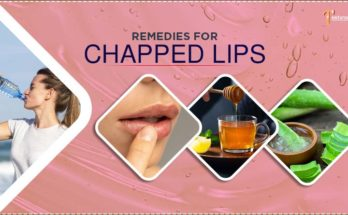 remedies for chapped lips image