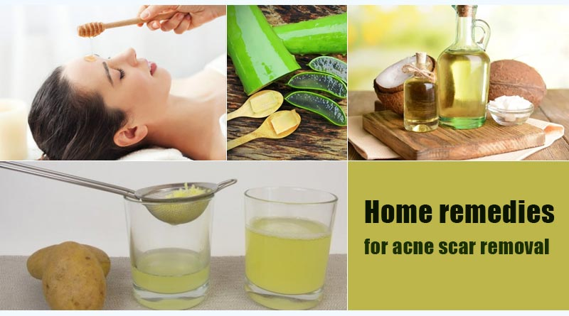 home remedies for acne scar removal