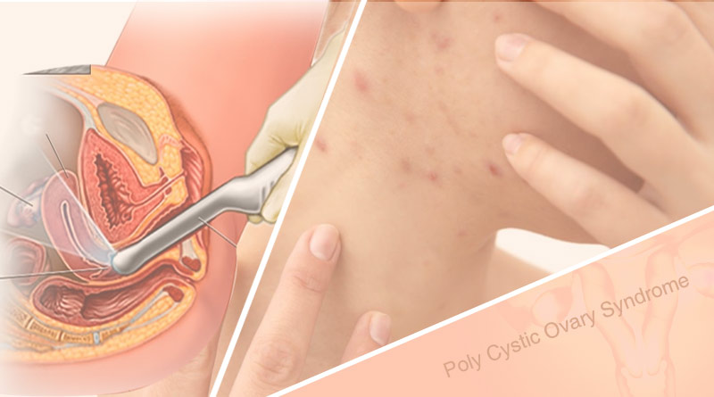 poly cystic ovary syndrome