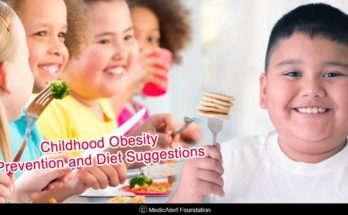 childhood obesity prevention and diet suggestions
