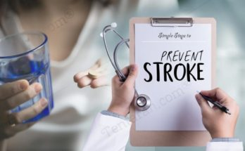 simple steps to prevent stroke