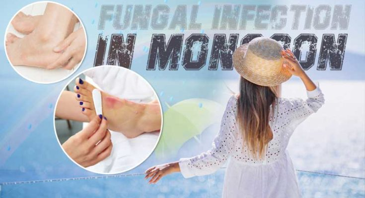 Tips-for-foot-care-to-avoid-fungal-infection-in-monsoon