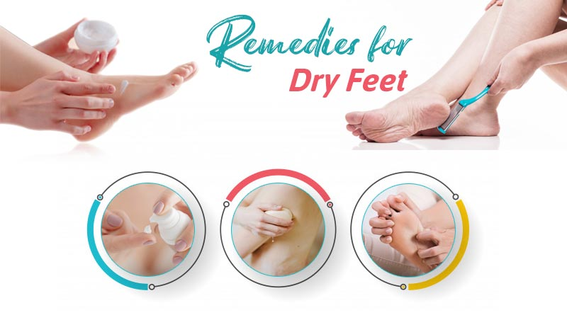 remedies for dry feet