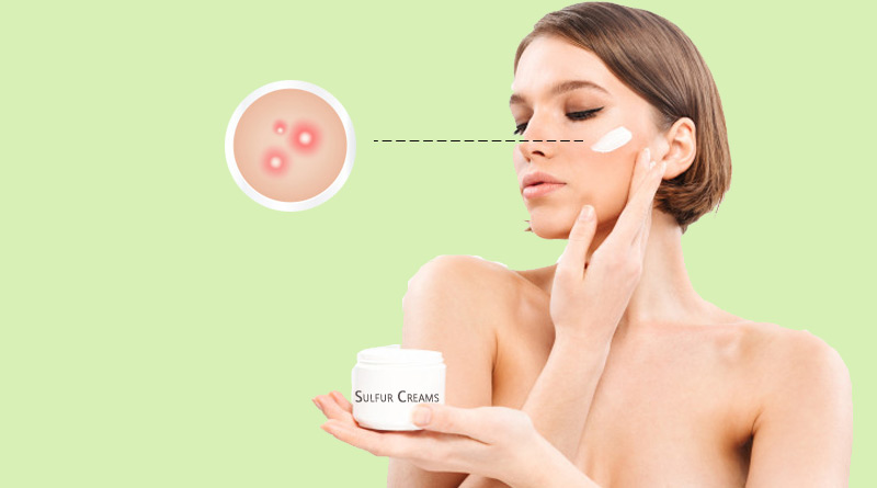 tips for removing pimples