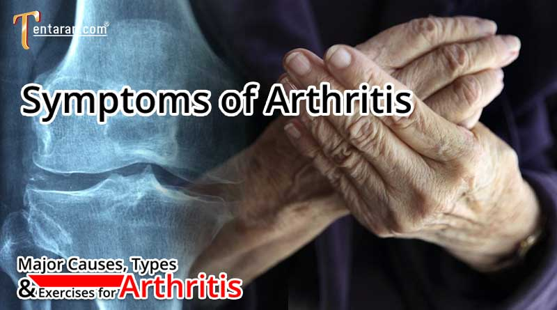 Symptoms of Arthritis