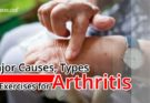 reason for arthritis
