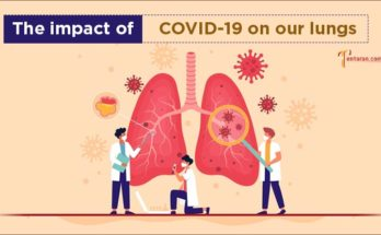 effects of covid on lungs image