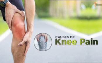 causes of knee pain image