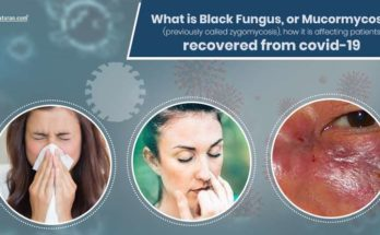 What is Black Fungus or Mucormycosis