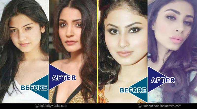 actresses whose plastic surgery went wrong
